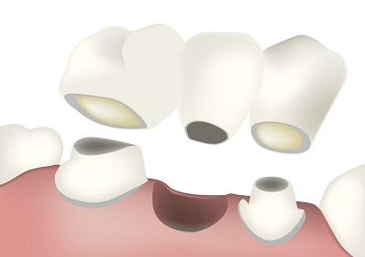 Diagram of a dental bridge from dentist office in Modesto, CA.